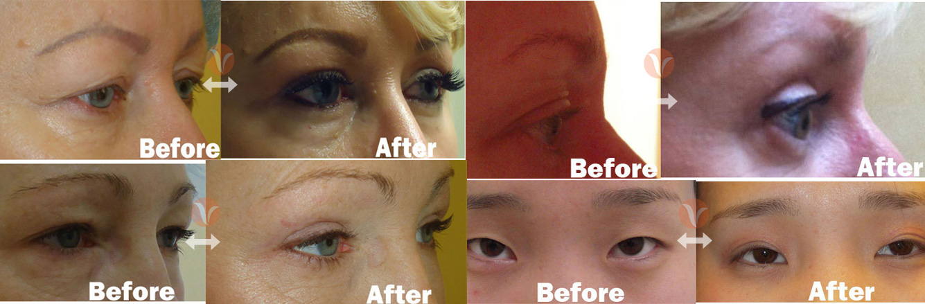 Foggybottom Eyelid Surgery | Body Sculpting & Laser Lipo New